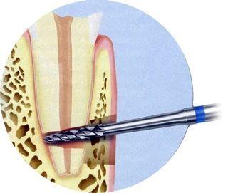 Allgemeine zahnärztliche Chirugie